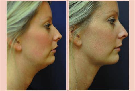 double chin tuck sew double chin neck liposuction seattle wa renton wa kent wa