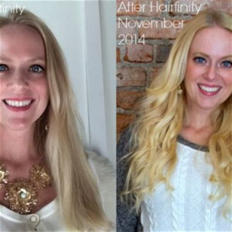 hair burst number hair burst before and after hair burst before and after
