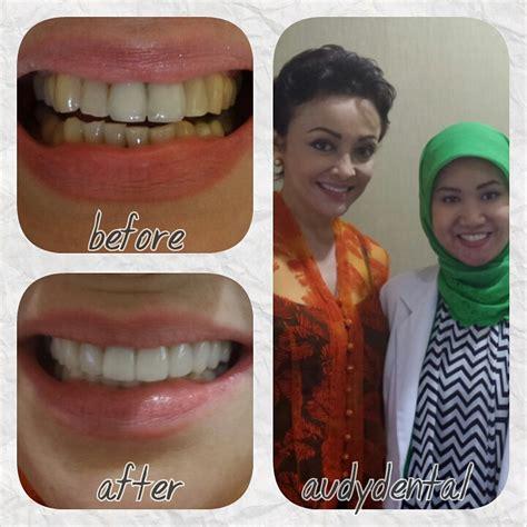 Veneer Pemutih Gigi veneer gigi artis minati atmanegara di jakarta audy dental