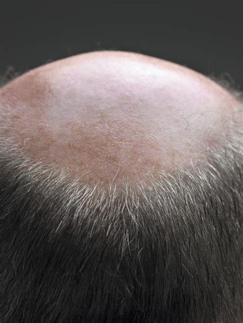 bald spot on bald spots doctor answers on healthtap
