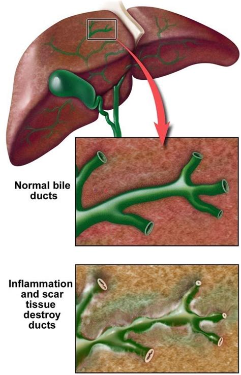 24 Hour Acute Detox by 24 Best Images About Psc Primary Sclerosing Cholangitis