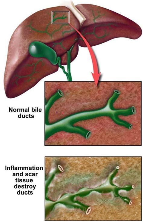 Bile Salts Liver Detox by 24 Best Psc Primary Sclerosing Cholangitis Images On