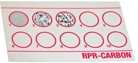 rpr test rapid plasma reagin rpr test principle procedure and