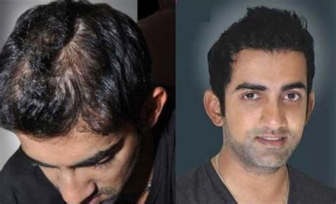 ranbirs hair line male celebrities who have undergone plastic surgery and