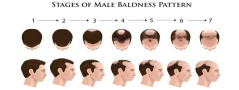 beginning stages of growing hair out for black men early warning signs of male pattern baldness the idle man