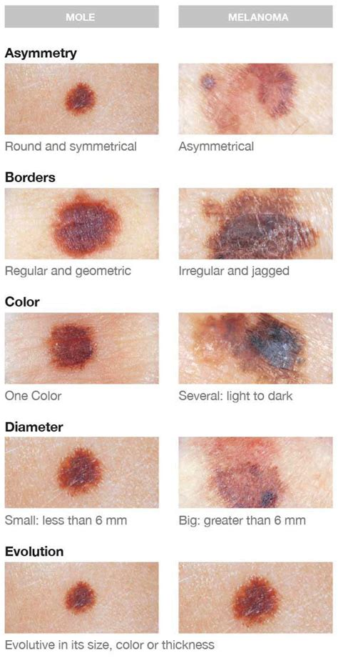 8 Tips For Spotting Skin Cancer Early by Self 5 Ways To Spot Skin Cancer Sun Care Tips L
