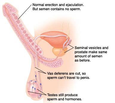 understanding vasectomy