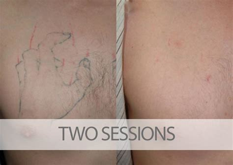 tattoo removal success pictures removal before and after pictures tatt away