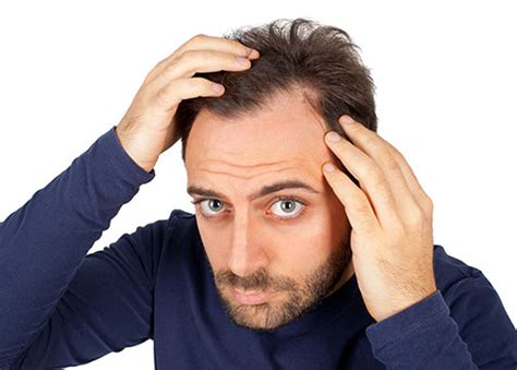 men losing hair three of the most common hair breakage causes common curable signs symptoms of hair loss vcare
