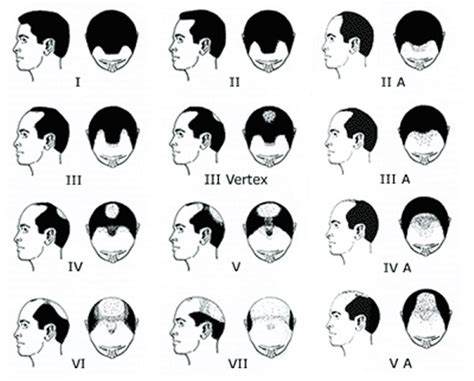 growth pattern classification norwood scale for male pattern hair loss