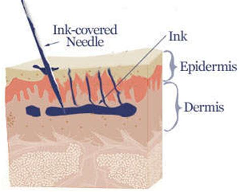 how a tattoo works how does laser removal work detailed post with