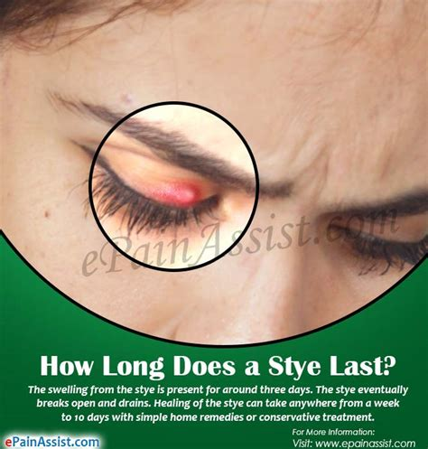 eye tattoo how long does it last sty on the eye home treatment hairsstyles co