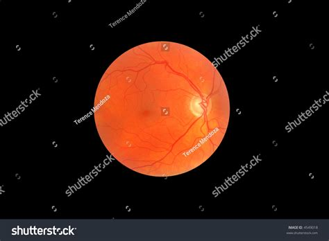 optic disc stock photos and glaucoma image fundus retina showing stock photo