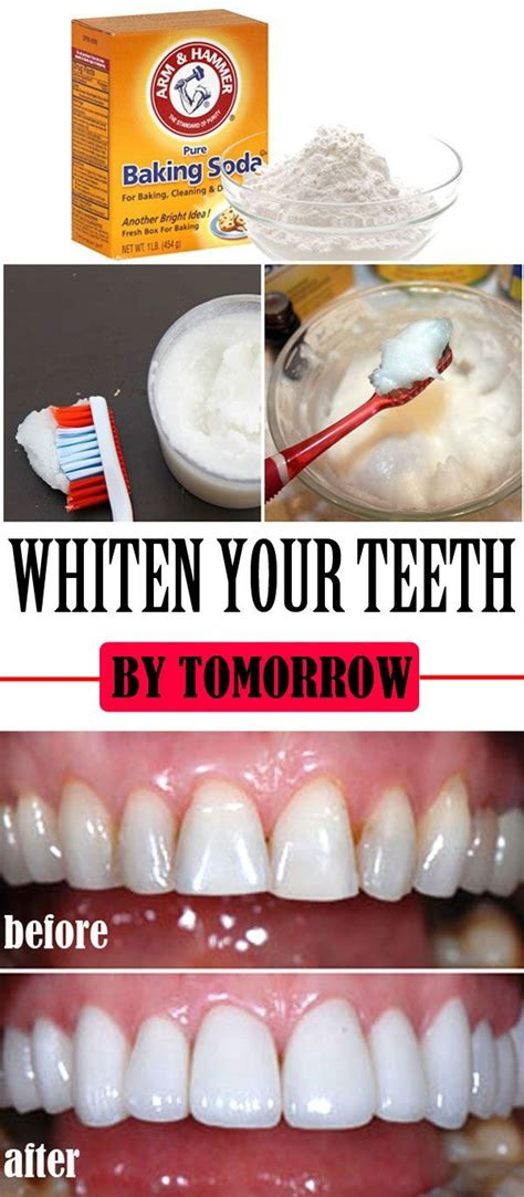 top  teeth whitening home remedies home read