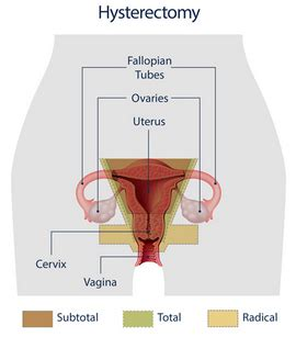 hysterectomy diagram diagram of uterus after hysterectomy gallery how to