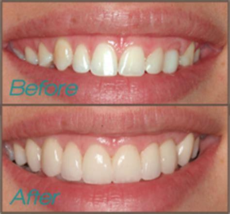 smile gallery gentle dental studiogentle dental studios