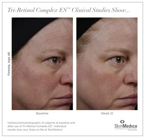 U And Your Skin by Tretinoin Before And After Wrinkles Www Imgkid The