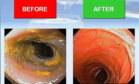After Detox From by Colon Detox Cleaning The Engine
