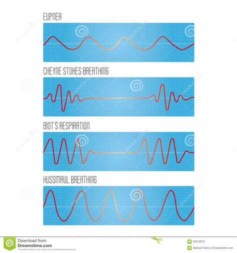 breathing pattern messed up graph of breathing the pathological types of breathing