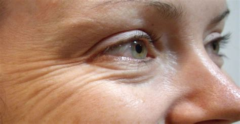 with wrinkles wrinkles home remedy