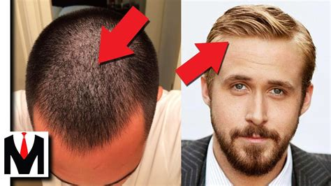 before and after thinning mens haircut fine hair vs thin hair same or different men s hair