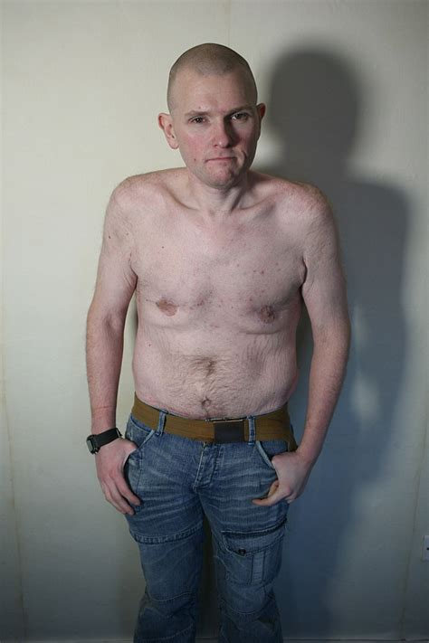 weight loss nhs excess skin after weight loss surgery on nhs