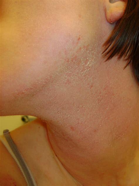 blotchy skin eczemaexcellence