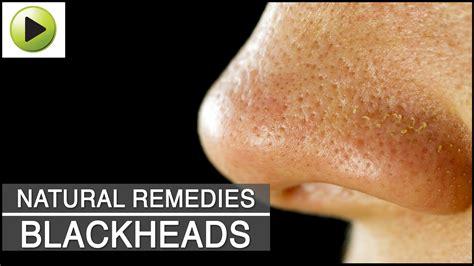 skin care blackheads ayurvedic home remedies
