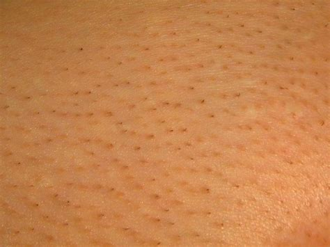 Laser Hair Removal Shedding Process by A Picture Of Area Hair After Shedding Two Weeks