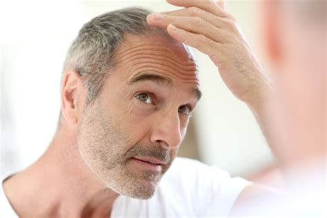 best haircuts for alopecia hair loss treatment lloydspharmacy online doctor uk