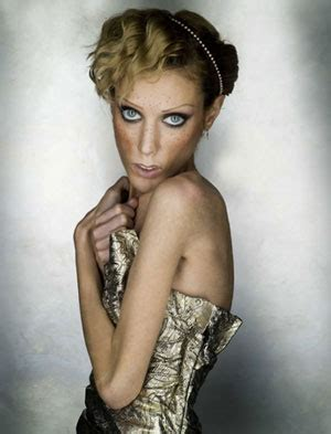 anorexic models that died isabelle caro anorexic model dies commits
