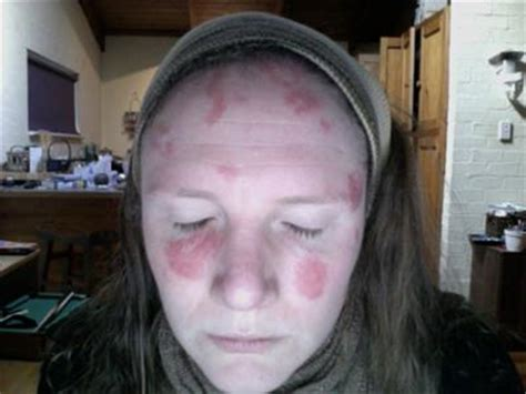 raised red lesions on forehead