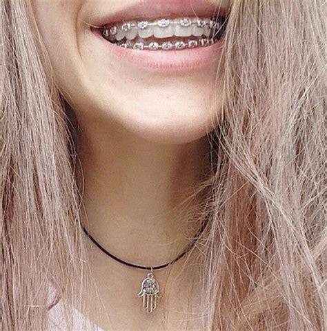 56 best images about people on pinterest girls pretty las 25 mejores ideas sobre brackets dentales en pinterest