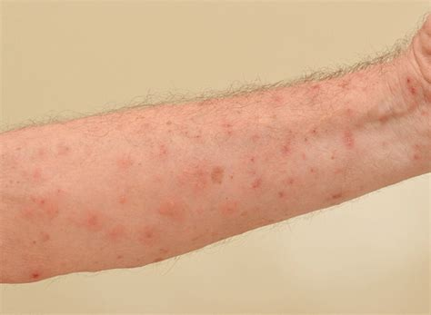 scabies overview infestation spread treatment