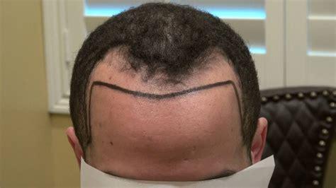 hair receding temple receding hairline corner temple hair restoration surgery