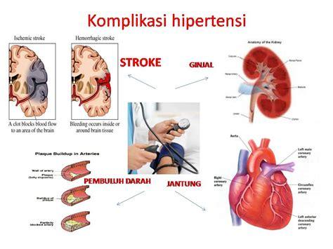 Penyakit Jantung Dan Tekanan Darah Tinggi terapi akupuntur di malang 08121697669 akupunktur malang