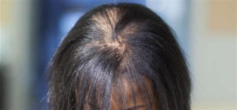 african american woman hair thinning on sides the hair conundrum the fertile chick