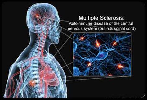 alimentazione sclerosi multipla come cura sclerosi multipla freeweed