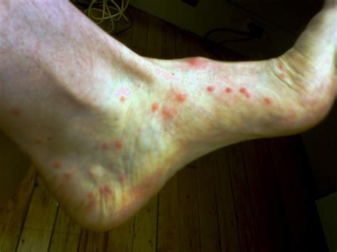 fleas symptoms sand flea bites and treatment