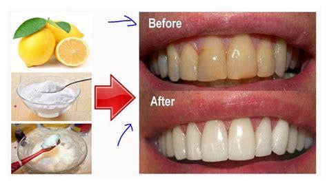 Biaya Pemutihan Gigi Ke Dokter 8 cara efektif memutihkan gigi secara alami yang harus kamu coba berbagi opini