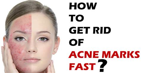 how to get rid of acne marks fast