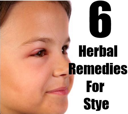 cures for arthritis in home remedies for hsv stye