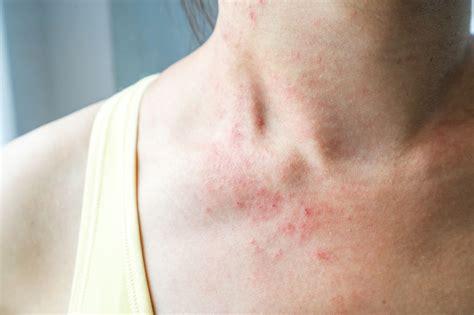 Stiche Im Nacken by Kontaktallergie Ausl 246 Ser Symptome