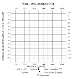 audiometry assessmentofhearing