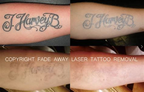 laser away tattoo removal this is an exle of the stages of fading of a