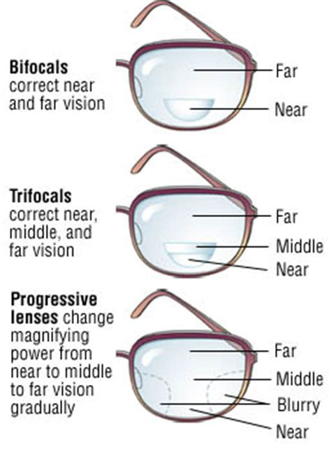 presbyopia guide causes symptoms and treatment options