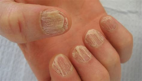 cracked nail image gallery splitting fingernails