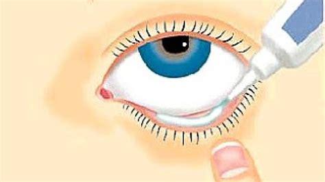 Salep Antibiotik bagaimana cara menggunakan salep mata kimia farma apotek