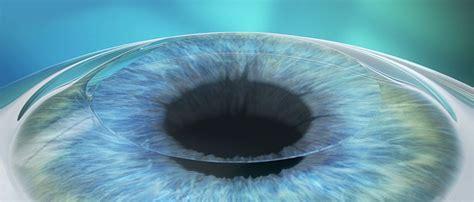 corpi mobili vitreali cura patologie degli occhi occhiali ottica scauzillo