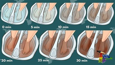 Can Acupuncture Help With Detox by Best 25 Foot Detox Ideas On Foot Detox Soak